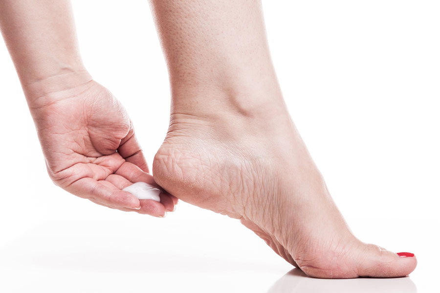 use diaper rash to moisturize and sooth your cracked heels