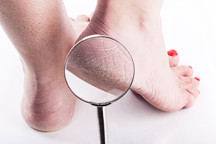 7 Ways to Get Rid of Cracked Heels Fast: & 2 Amazing Products to Soften Feet