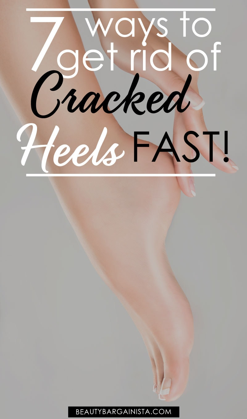 how to get soft heels fast